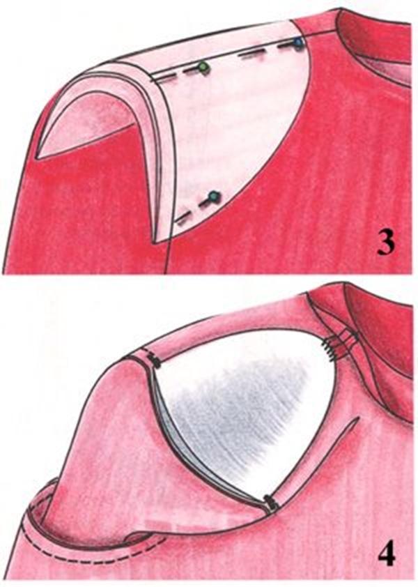Как пришить подплечники к пиджаку